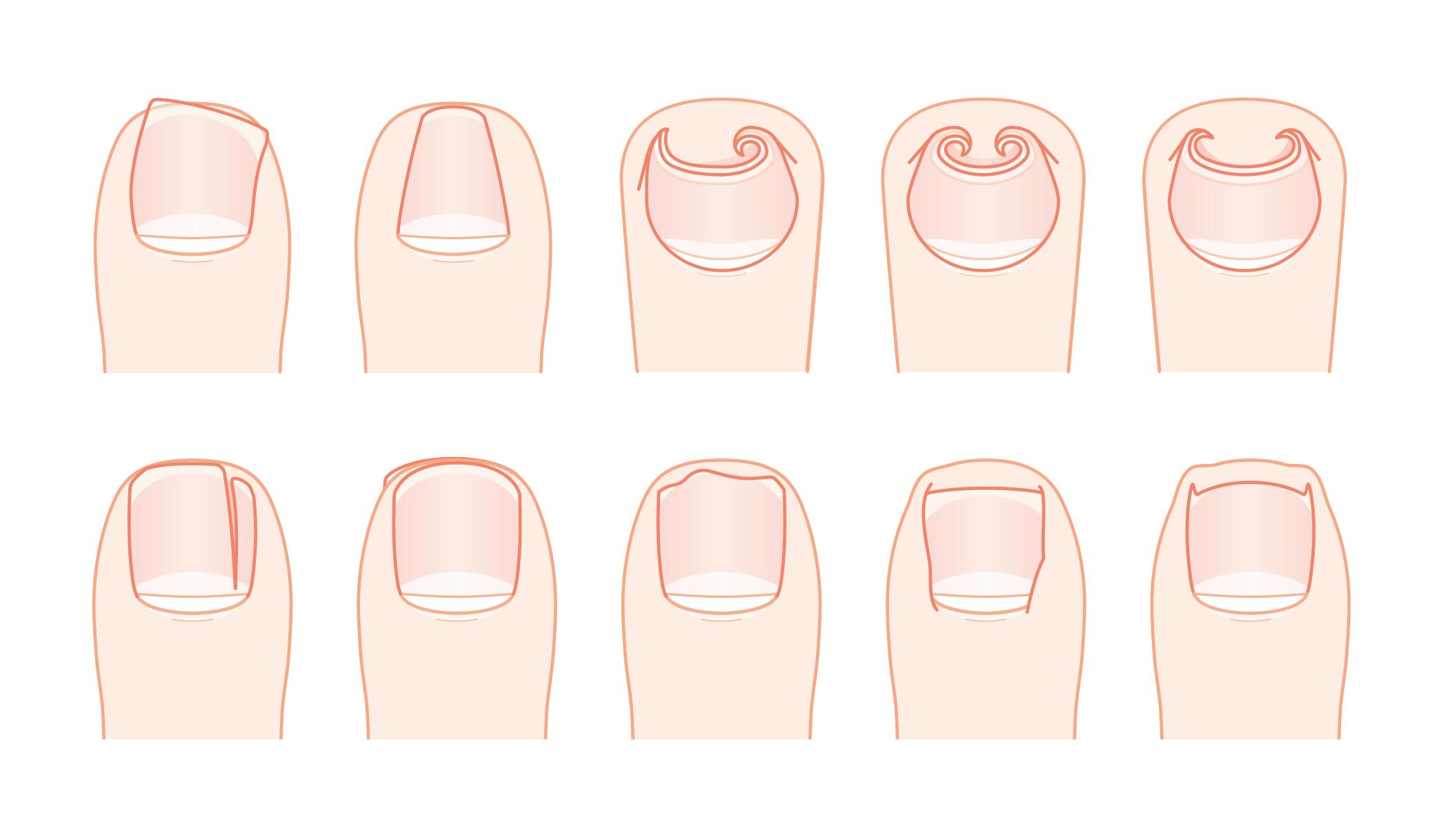 色々な巻き爪