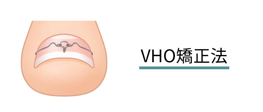 VHO矯正法(イラスト)