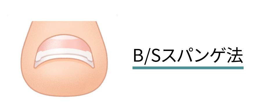 B/Sスパンゲ法(イラスト)
