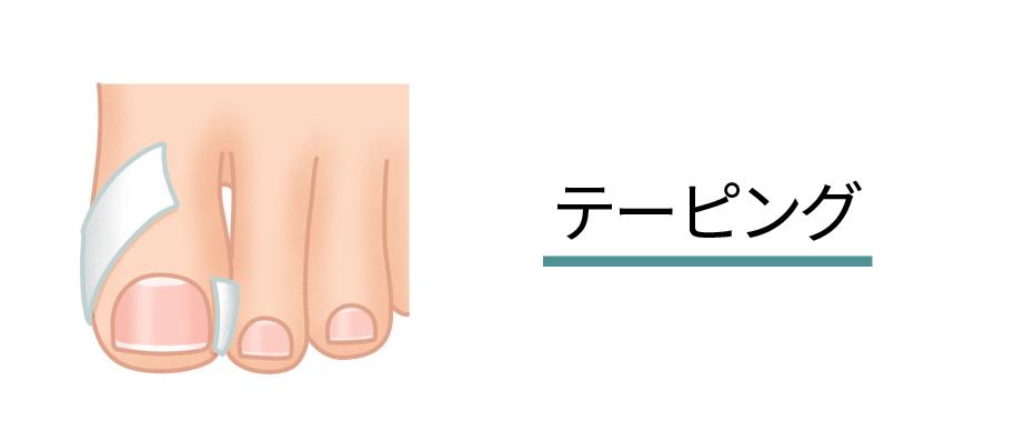 テーピング(イラスト)