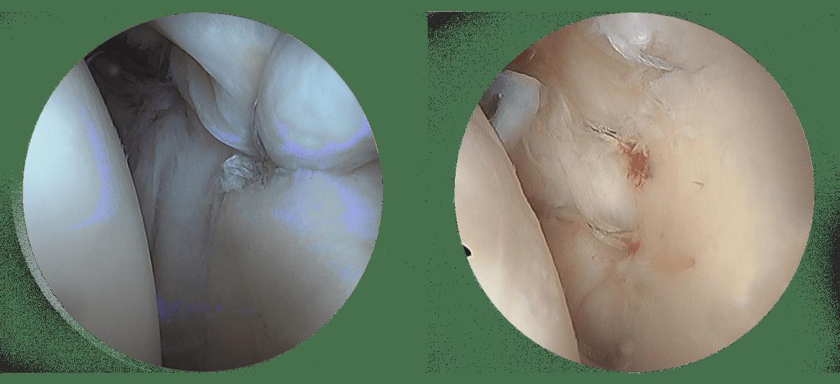 Traitement  Lesion SLAP