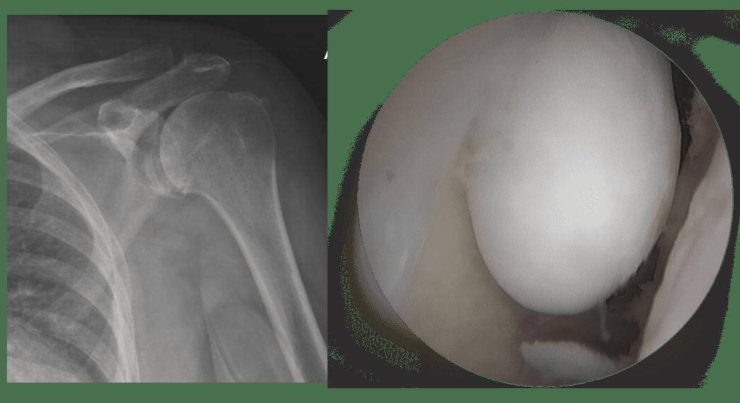 x-ray of shoulder with Arthiritis +souris articulaire epaule