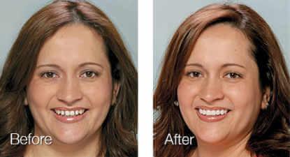 lumineers dentistry before aftre