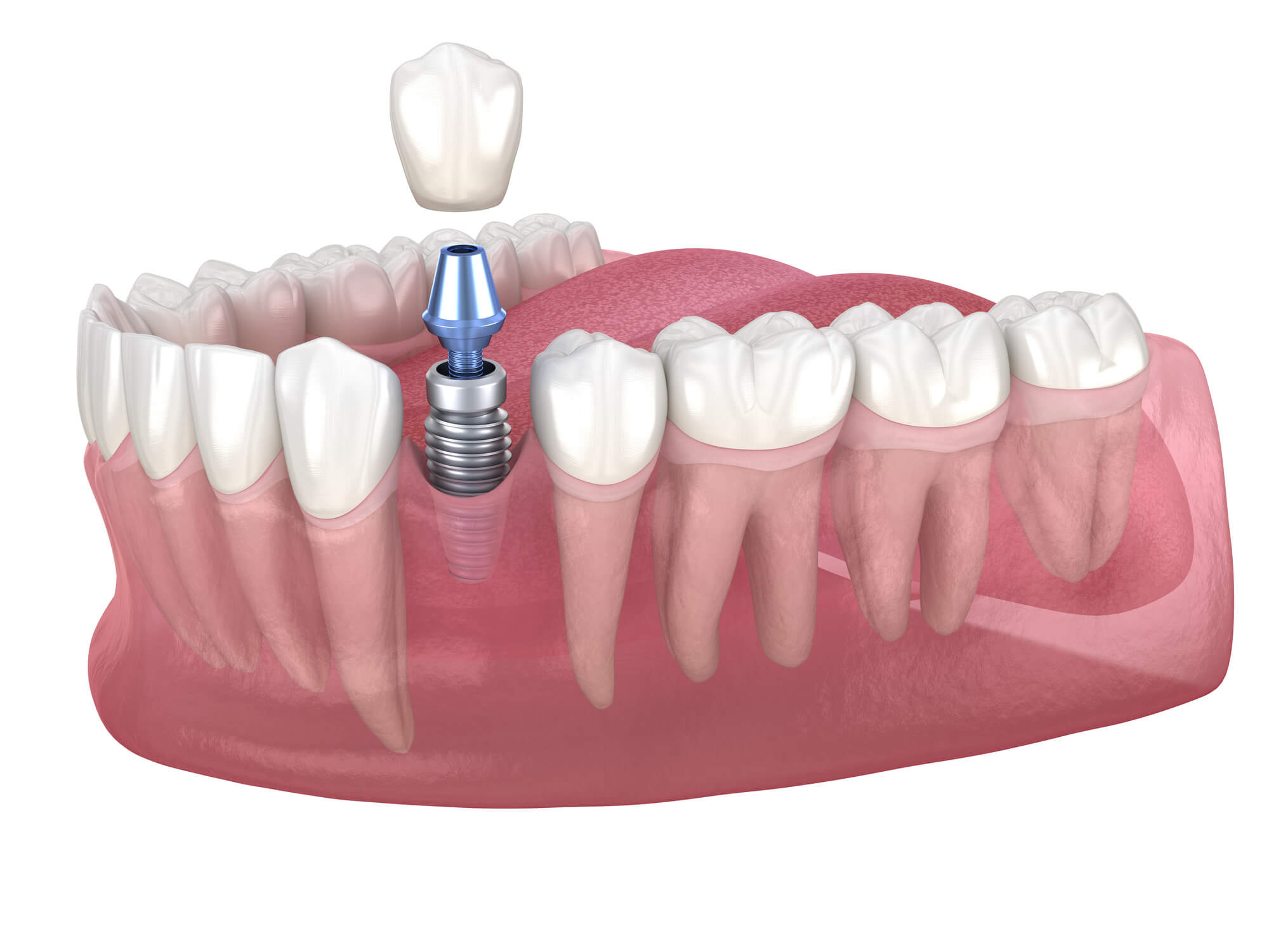 Same Day Dental Implants