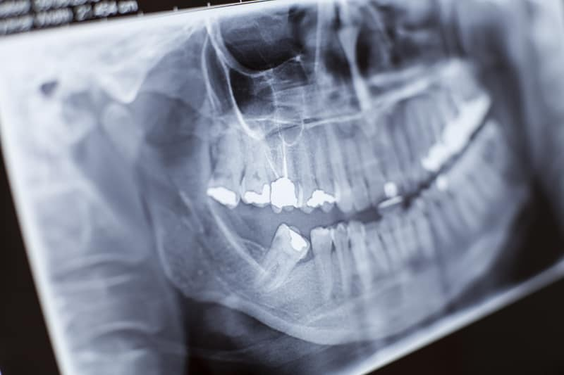 dental xray of cracked tooth