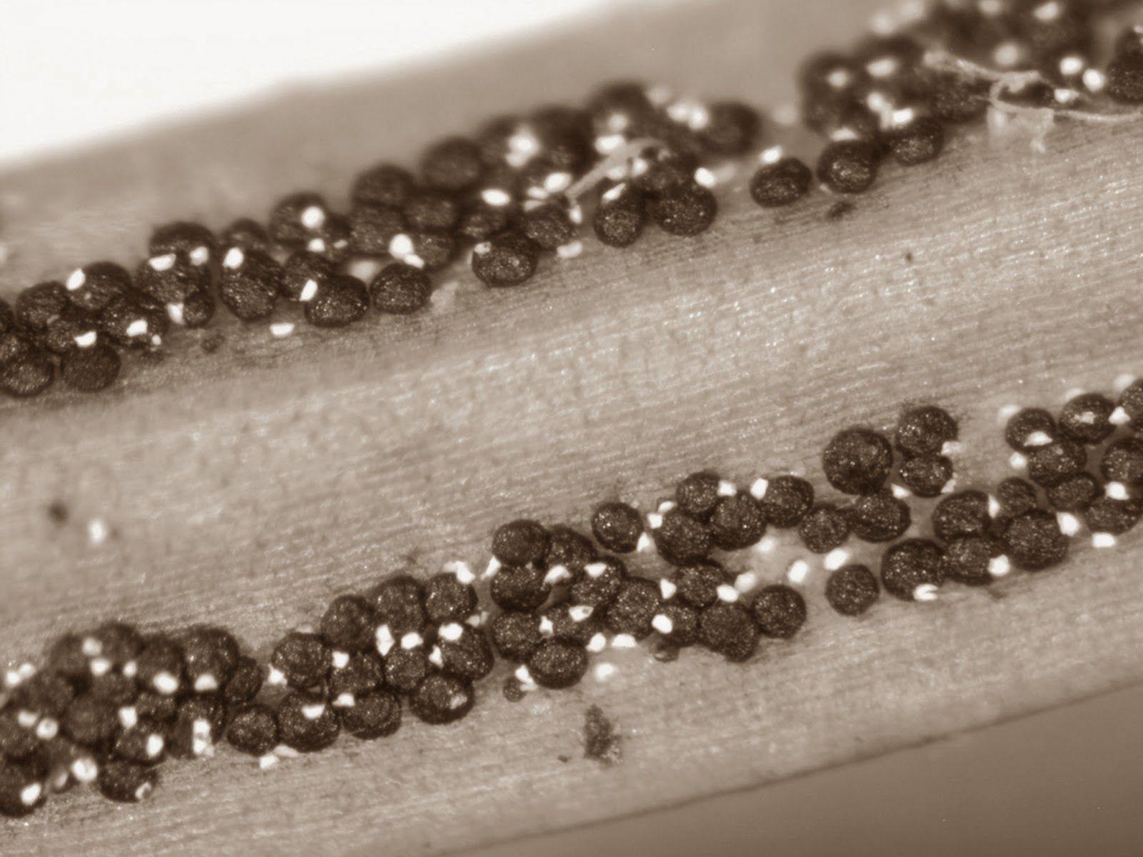 Rhizosphaera Needle Cast