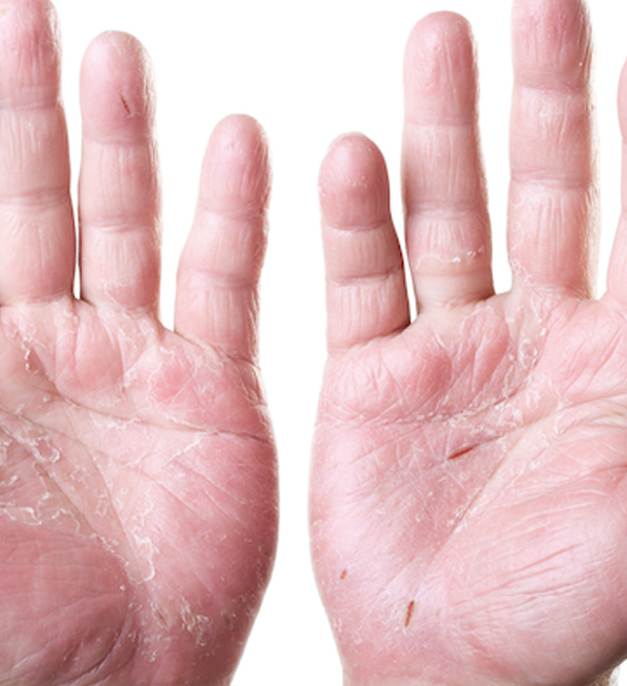 COVID-19 Hand Hygiene and Dry Skin: 3 Tips for Reducing the Risk of Dry and Cracked Hands