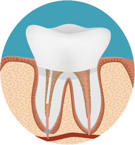 root canal with crown