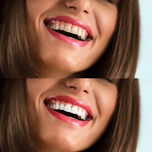 comparison of before and after teeth whitening