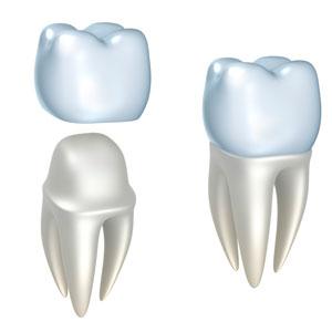 Dental crown procedure image