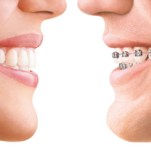 before after orthodontic treatment