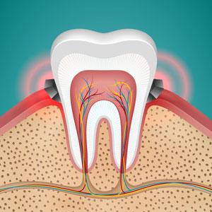 gum disease gingivitis in tooth