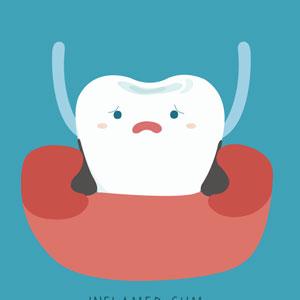 bleeding gums due to poor oral hygiene