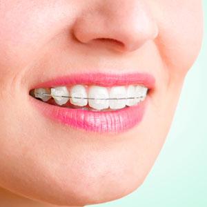 coloured ceramic braces orthodontics