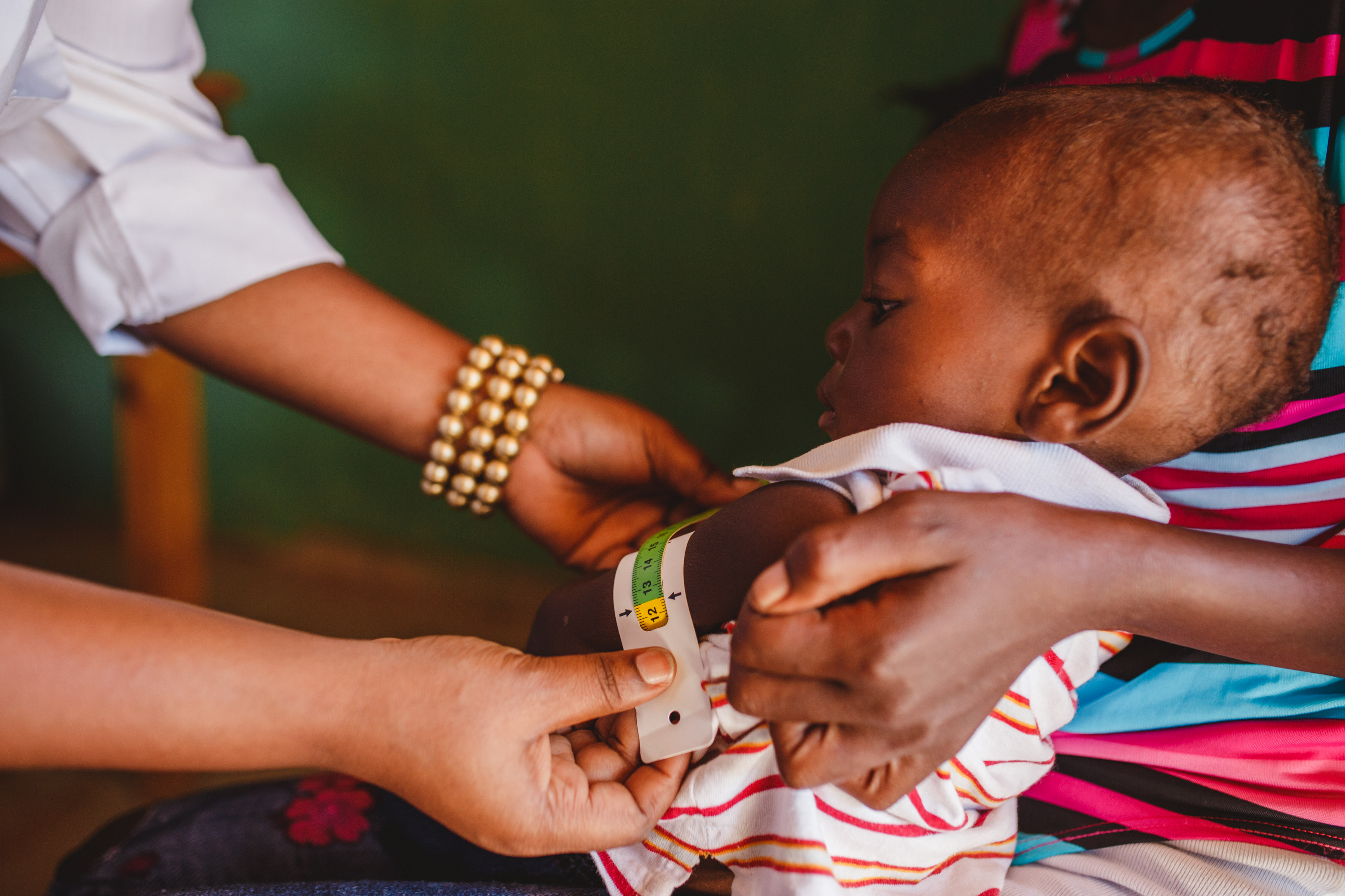 Child at malnutrition clinic