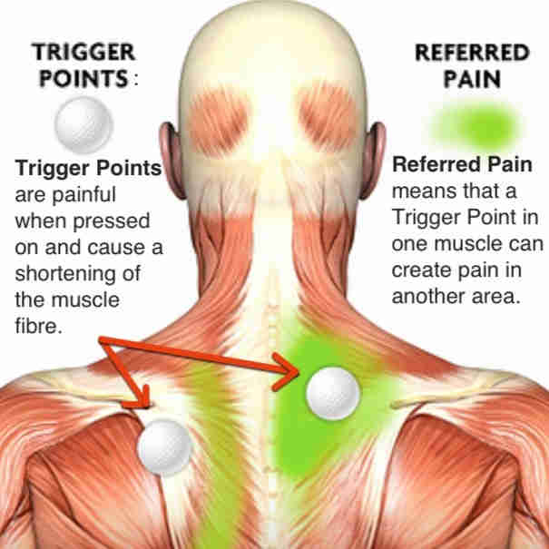 trigger points for muscle pain