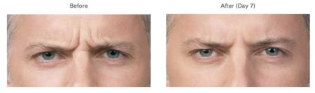 botox before and after photos for worry lines
