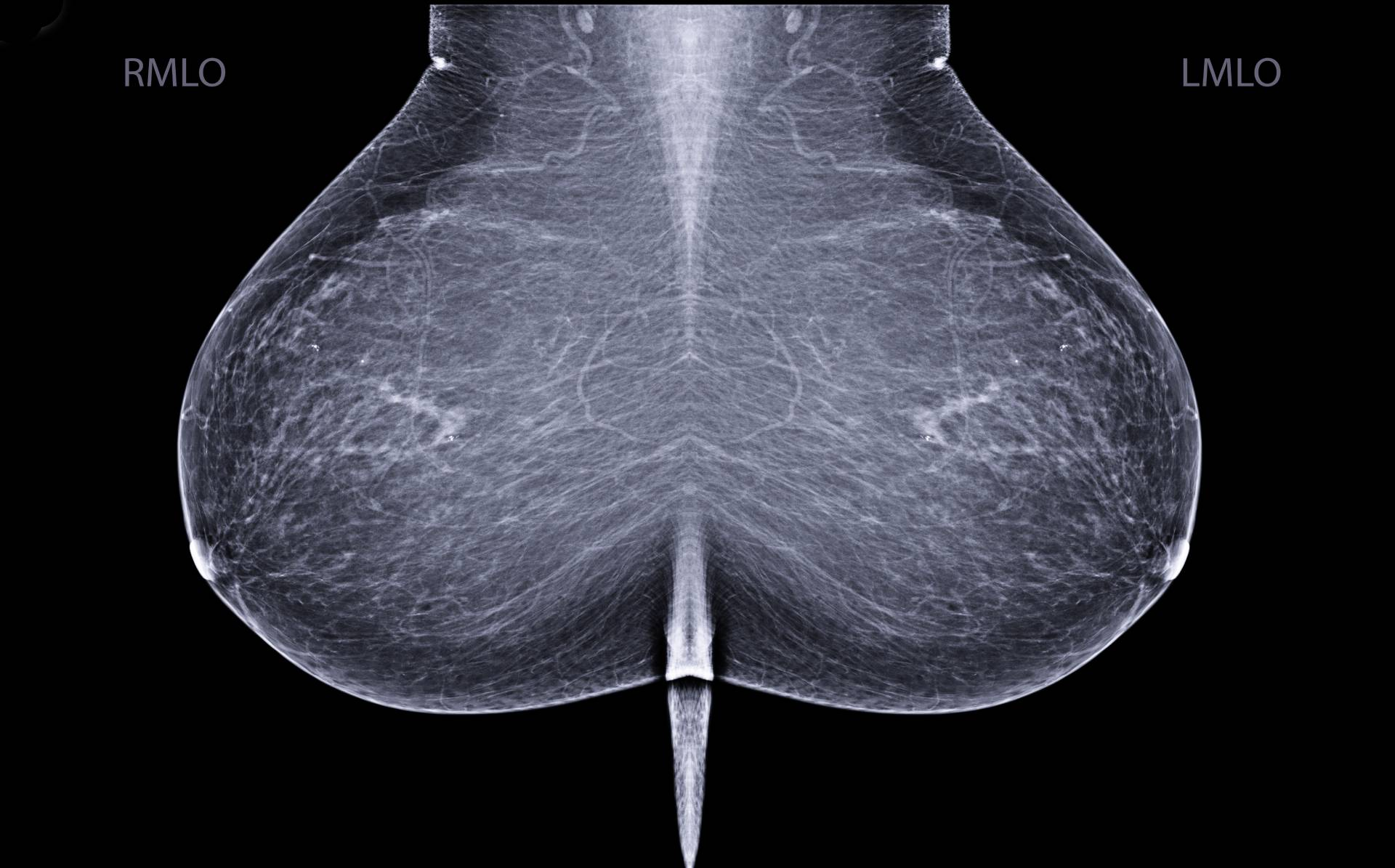 Breast images in mammography