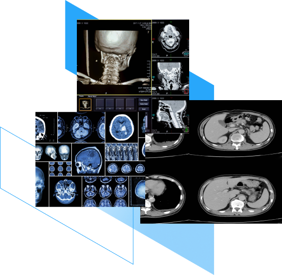 CT images